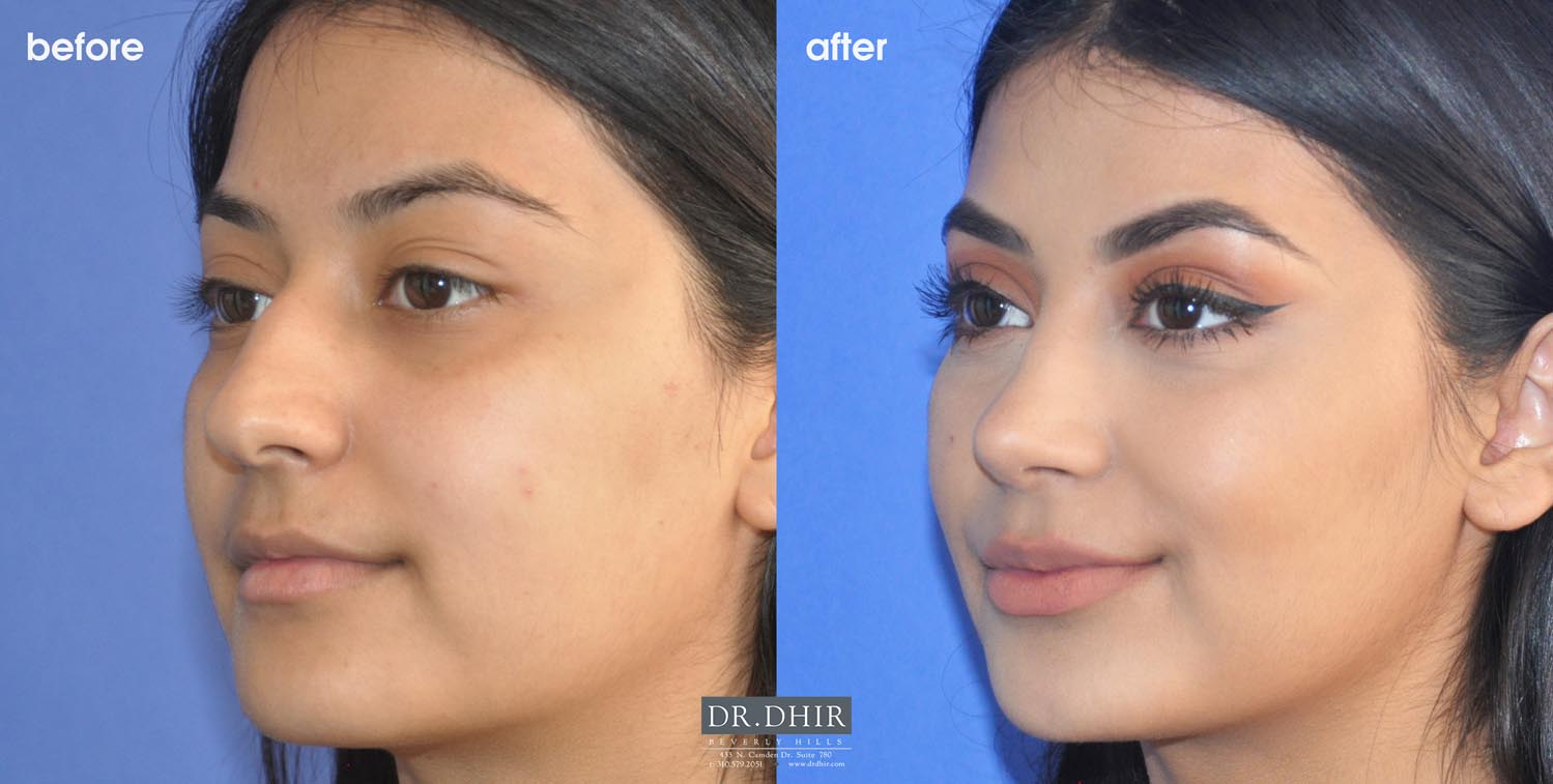 Best Rhinoplasty Beverly Hills Natural Results Dr Dhir Plastic Surgery